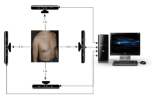 Kinect to Improved Respiratory Assessments